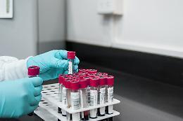 Cellule staminali svanite, denunciata la Cryo-Save