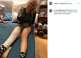 Luciana Littizzetto cade in strada, 'fratturata'