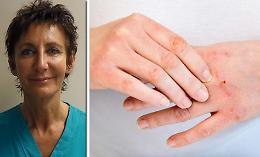 «Dermatiti in agguato se si esagera con il gel»