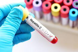 Epatite C,  13 milioni di euro per lo screening gratuito