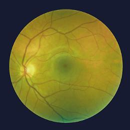 Conferenza: la retinopatia diabetica e le ultime tecniche